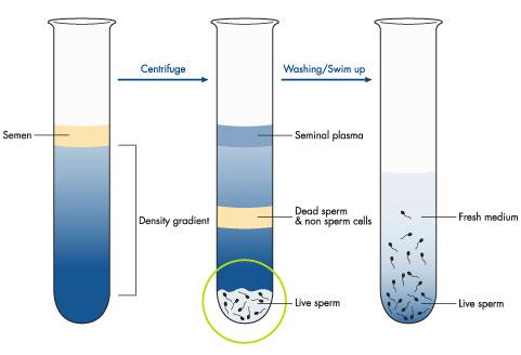 patologiya-formi-spermatozoida