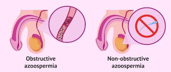 azoospermia obstruktif